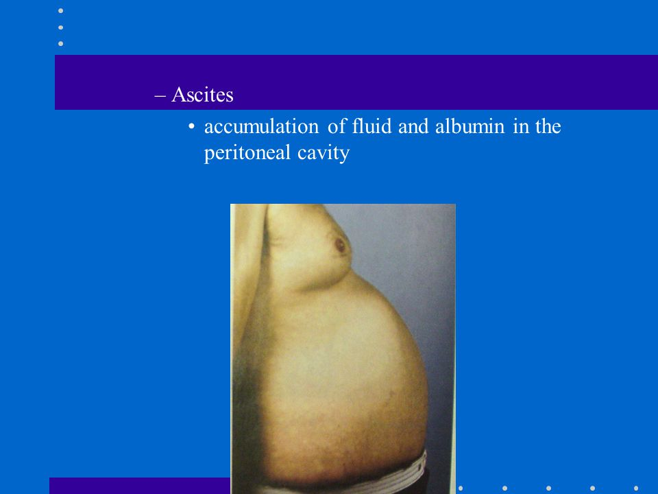 –Ascites accumulation of fluid and albumin in the peritoneal cavity
