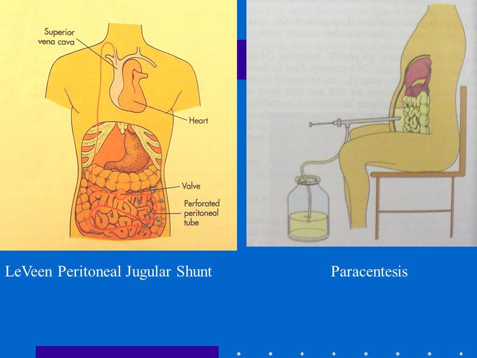LeVeen Peritoneal Jugular ShuntParacentesis