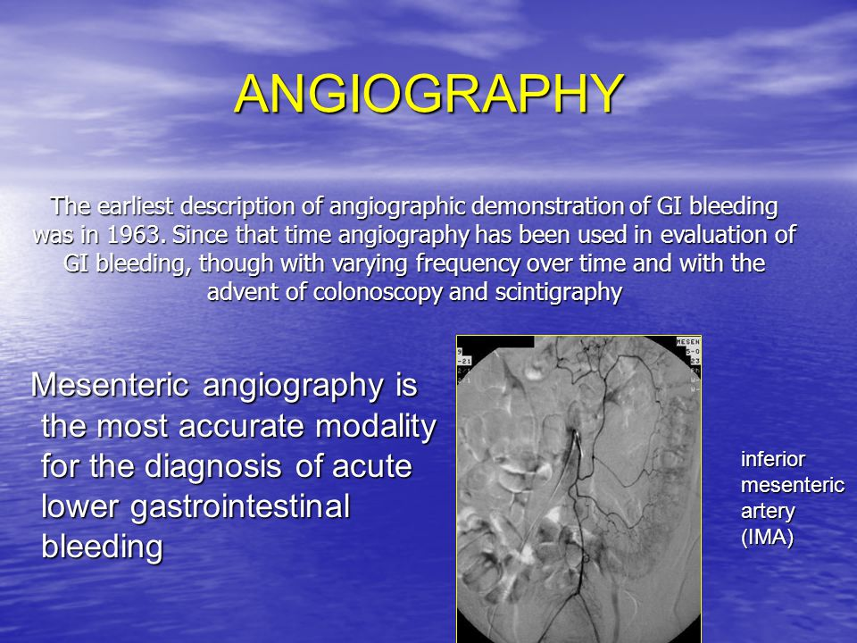 Are there factors to predict which patients will benefit from angiography.