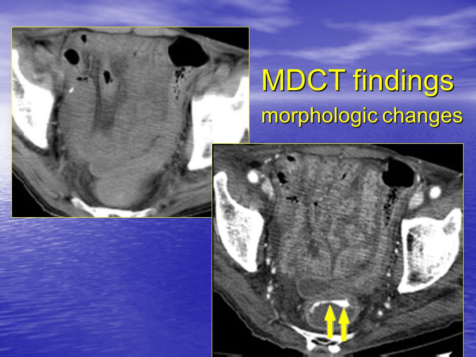 MDCT findings morphologic changes