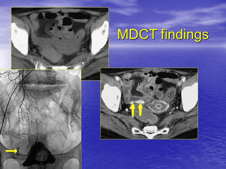 MDCT findings