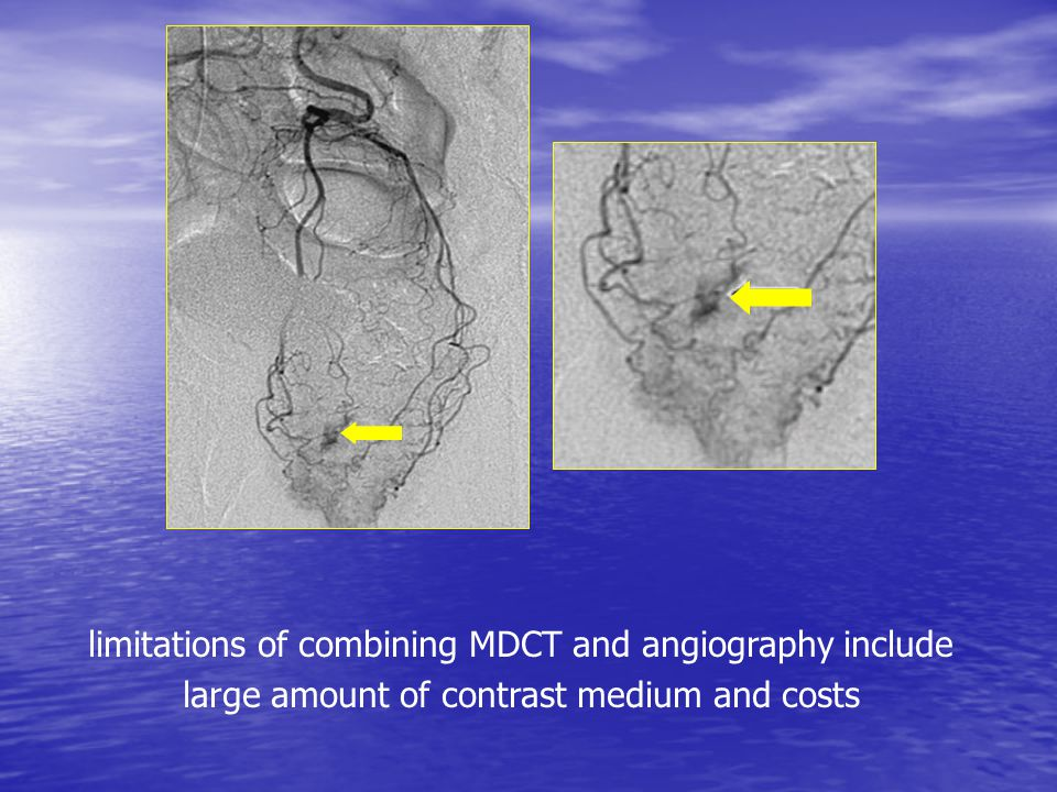 limitations of combining MDCT and angiography include large amount of contrast medium and costs