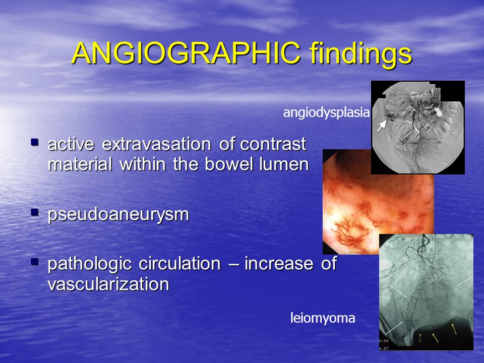 ANGIOGRAPHIC findings  active extravasation of contrast material within the bowel lumen  pseudoaneurysm  pathologic circulation – increase of vascu
