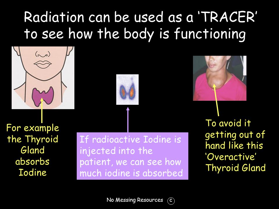 No Messing Resources c Radiation can be used as a 'TRACER' to see how the body is functioning For example the Thyroid Gland absorbs Iodine If radioactive Iodine is injected into the patient, we can see how much iodine is absorbed To avoid it getting out of hand like this 'Overactive' Thyroid Gland