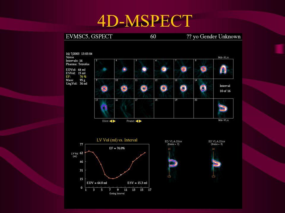 4D-MSPECT