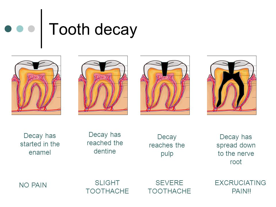 Tooth decay Decay has started in the enamel NO PAIN Decay has reached the dentine SLIGHT TOOTHACHE Decay reaches the pulp SEVERE TOOTHACHE Decay has s