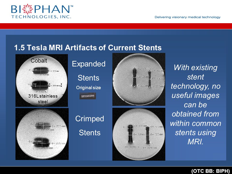(OTC BB: BIPH) 1.5 Tesla MRI Artifacts of Current Stents Expanded Stents Original size Crimped Stents Cobalt 316L stainless steel With existing stent technology, no useful images can be obtained from within common stents using MRI.