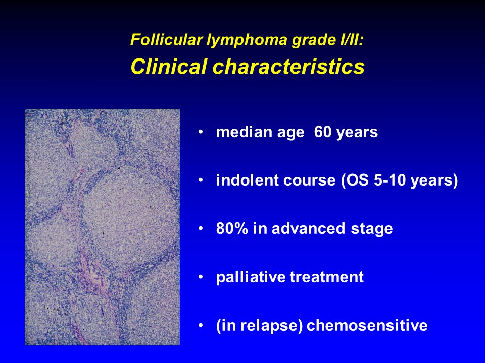 Follicular lymphoma grade I/II: Clinical characteristics median age 60 years indolent course (OS 5-10 years) 80% in advanced stage palliative treatment (in relapse) chemosensitive