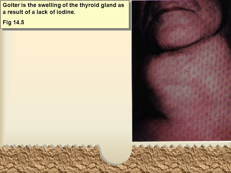 Goiter is the swelling of the thyroid gland as a result of a lack of iodine.