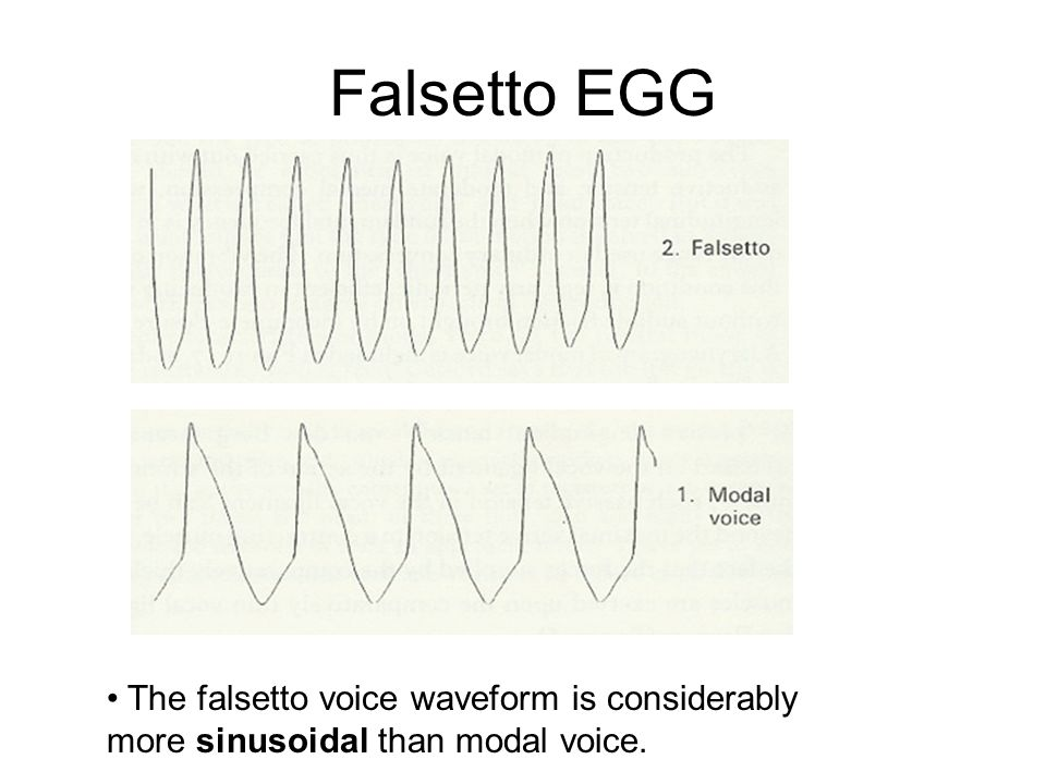 5. Falsetto The laryngeal specifications for falsetto: 1.High longitudinal tension 2.High adductive tension 3.High medial compression Contraction of t