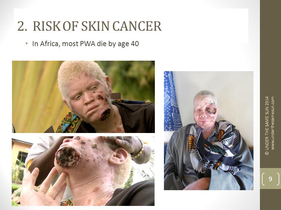 2. RISK OF SKIN CANCER In Africa, most PWA die by age 40 © UNDER THE SAME SUN 2014 www.underthesamesun.com 9