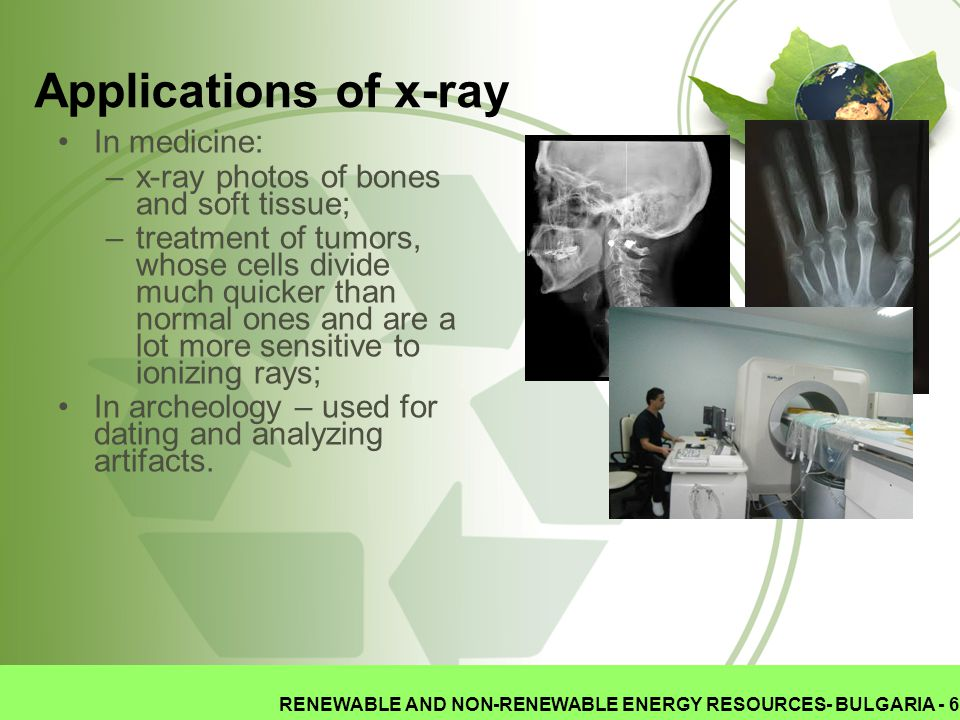 Applications of x-ray In medicine: –x-ray photos of bones and soft tissue; –treatment of tumors, whose cells divide much quicker than normal ones and are a lot more sensitive to ionizing rays; In archeology – used for dating and analyzing artifacts.
