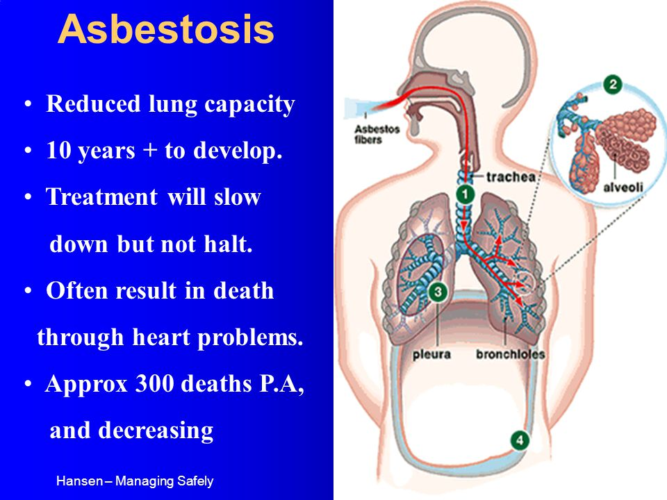Hansen – Managing Safely Asbestosis Reduced lung capacity 10 years + to develop.