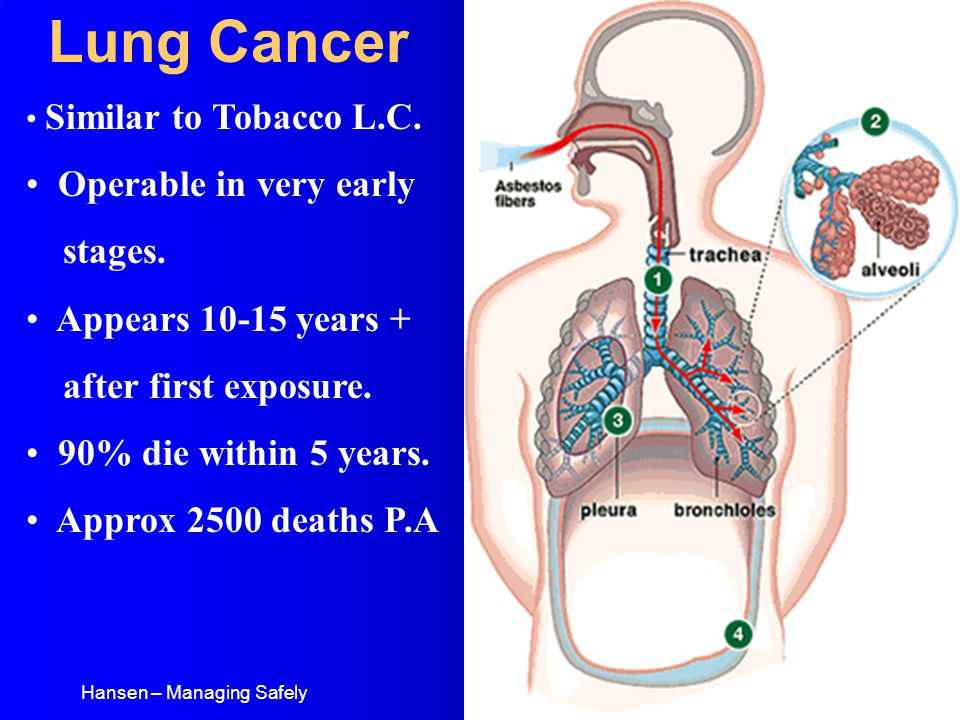 Hansen – Managing Safely Lung Cancer Similar to Tobacco L.C.