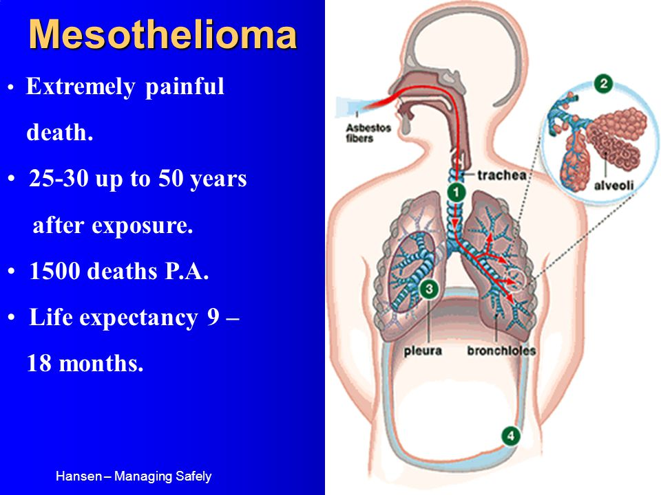 Mesothelioma Extremely painful death. 25-30 up to 50 years after exposure.