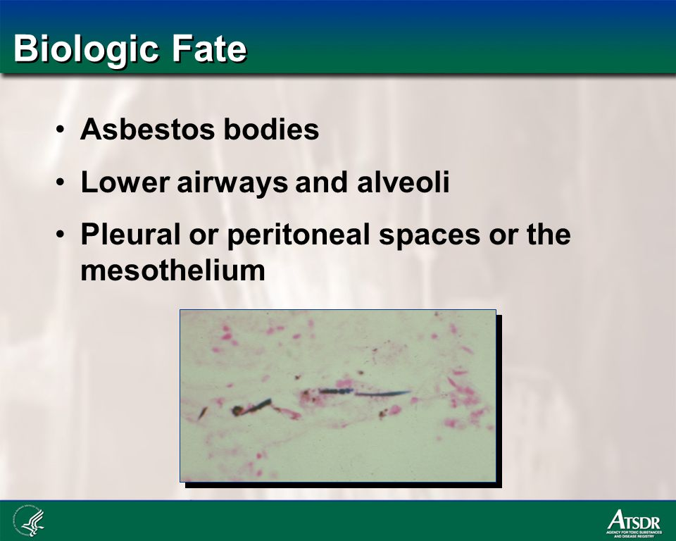 Biologic Fate Asbestos bodies Lower airways and alveoli Pleural or peritoneal spaces or the mesothelium