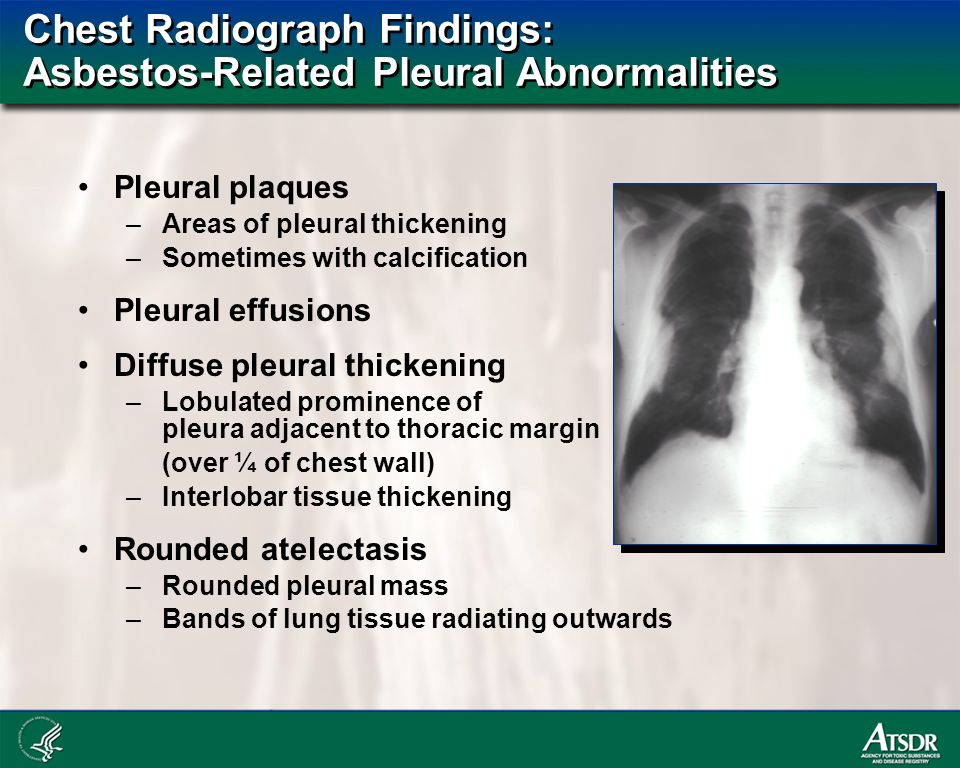 Chest Radiograph Findings: Asbestos-Related Pleural Abnormalities Pleural plaques –Areas of pleural thickening –Sometimes with calcification Pleural effusions Diffuse pleural thickening –Lobulated prominence of pleura adjacent to thoracic margin (over ¼ of chest wall) –Interlobar tissue thickening Rounded atelectasis –Rounded pleural mass –Bands of lung tissue radiating outwards