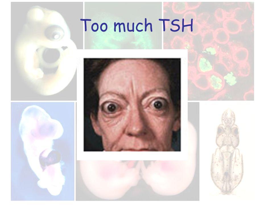 Too much TSH