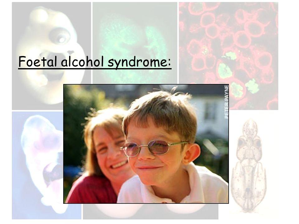 Foetal alcohol syndrome: