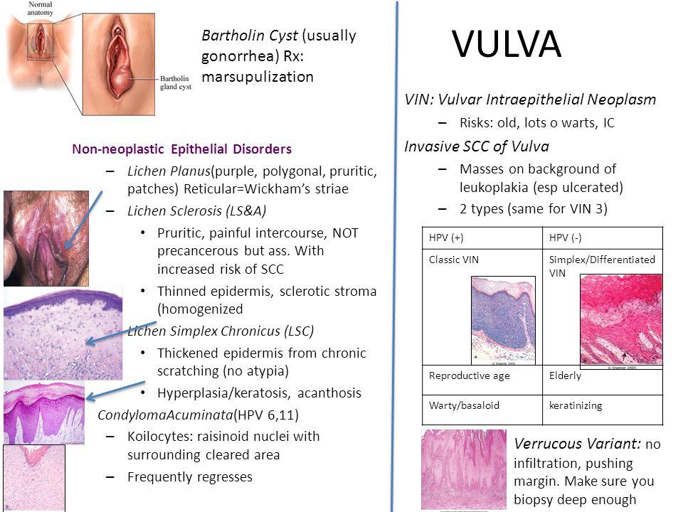 VULVA Non-neoplastic Epithelial Disorders – Lichen Planus(purple, polygonal, pruritic, patches) Reticular=Wickham's striae – Lichen Sclerosis (LS&A) P