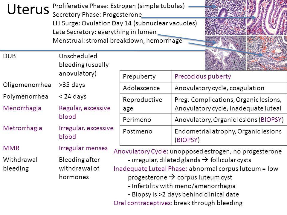 Uterus DUBUnscheduled bleeding (usually anovulatory) Oligomenorrhea>35 days Polymenorrhea< 24 days MenorrhagiaRegular, excessive blood MetrorrhagiaIrr