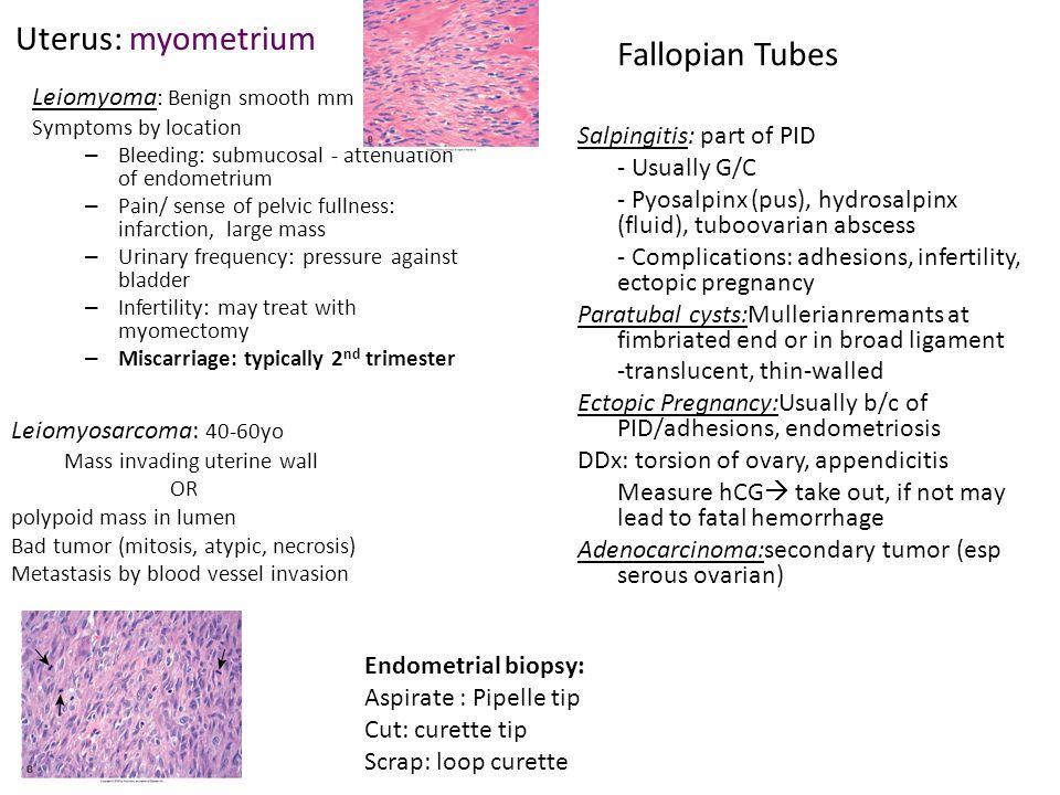 Uterus: myometrium Leiomyoma : Benign smooth mm Symptoms by location – Bleeding: submucosal - attenuation of endometrium – Pain/ sense of pelvic fulln