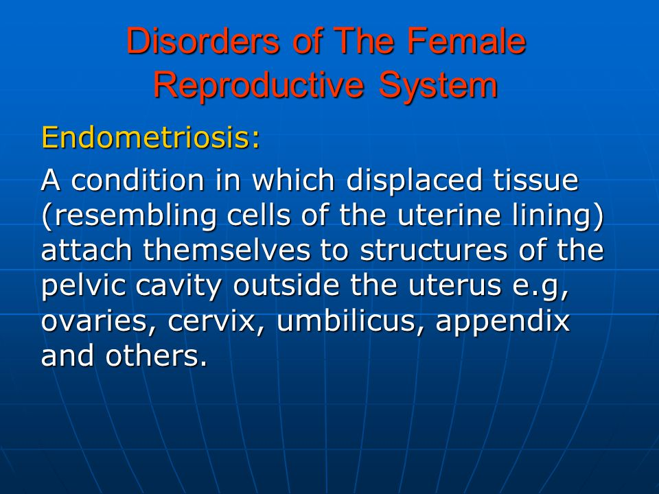 Disorders of The Female Reproductive System Endometriosis: A condition in which displaced tissue (resembling cells of the uterine lining) attach themselves to structures of the pelvic cavity outside the uterus e.g, ovaries, cervix, umbilicus, appendix and others.