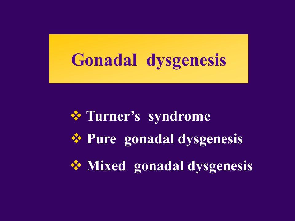  Turner's syndrome  Pure gonadal dysgenesis  Mixed gonadal dysgenesis