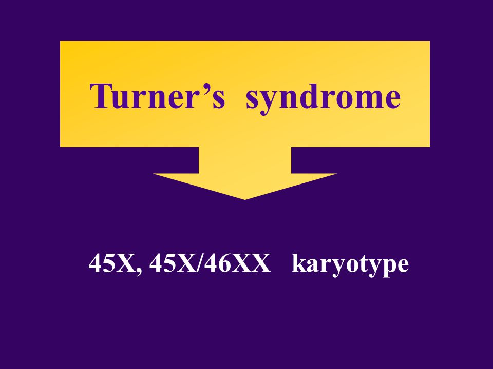 Turner's syndrome 45X, 45X/46XX karyotype