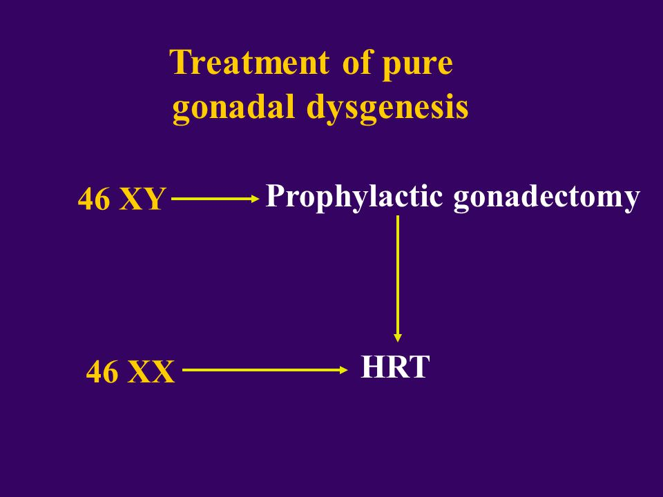 Treatment of pure gonadal dysgenesis 46 XY Prophylactic gonadectomy 46 XX HRT