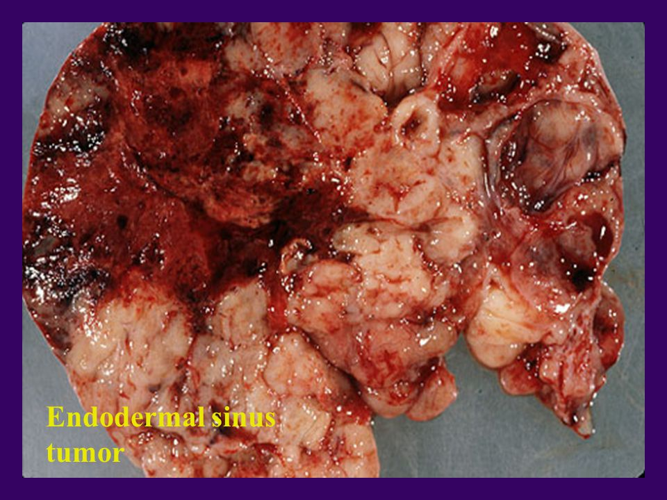 Endodermal sinus tumor