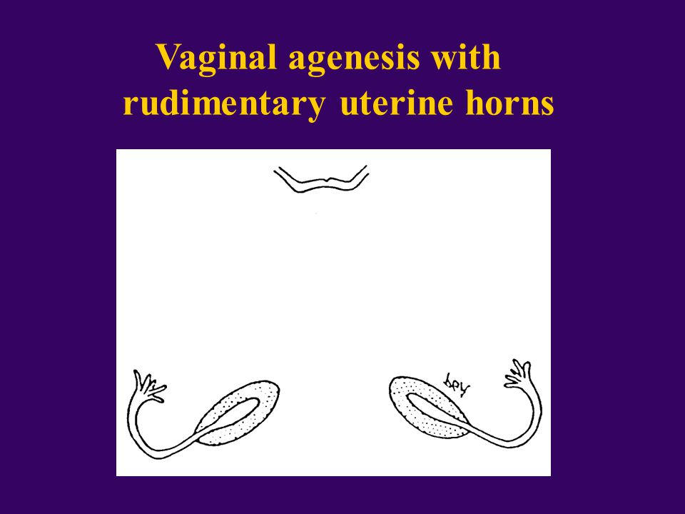 Vaginal agenesis with rudimentary uterine horns