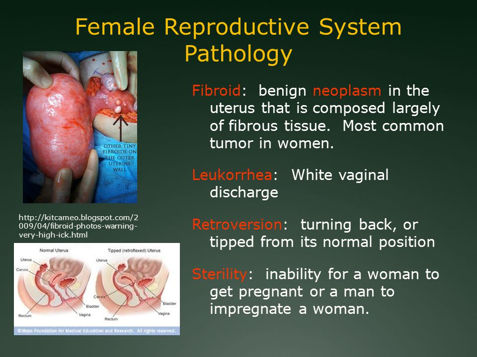 Fibroid: benign neoplasm in the uterus that is composed largely of fibrous tissue.