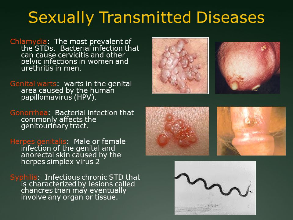 Sexually Transmitted Diseases Chlamydia: The most prevalent of the STDs.