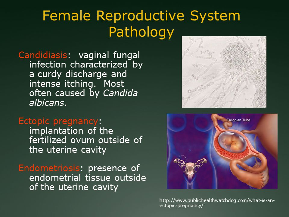 Female Reproductive System Pathology Candidiasis: vaginal fungal infection characterized by a curdy discharge and intense itching.