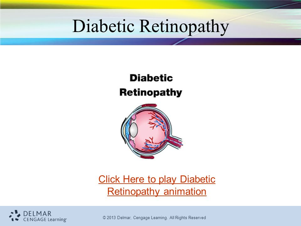 © 2013 Delmar, Cengage Learning. All Rights Reserved Diabetic Retinopathy Click Here to play Diabetic Retinopathy animation