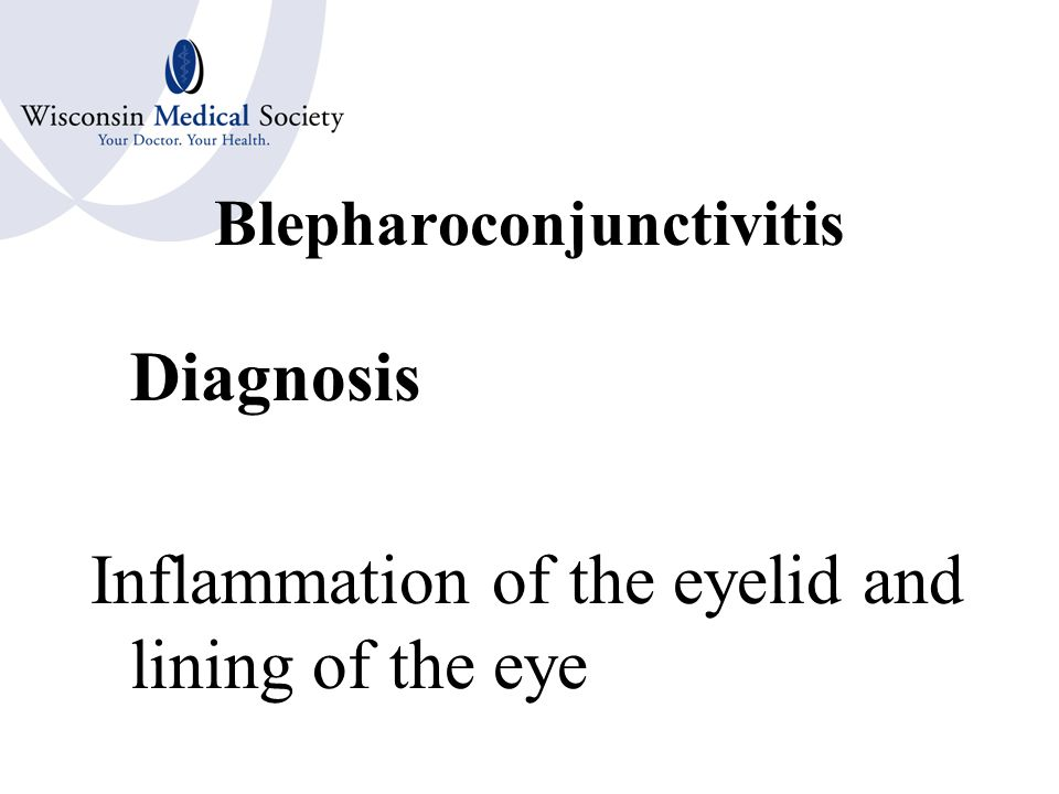 Blepharitis Diagnosis Inflammation of the eyelid