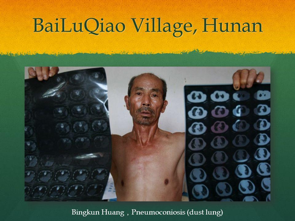 BaiLuQiao Village, Hunan Bingkun Huang , Pneumoconiosis (dust lung)
