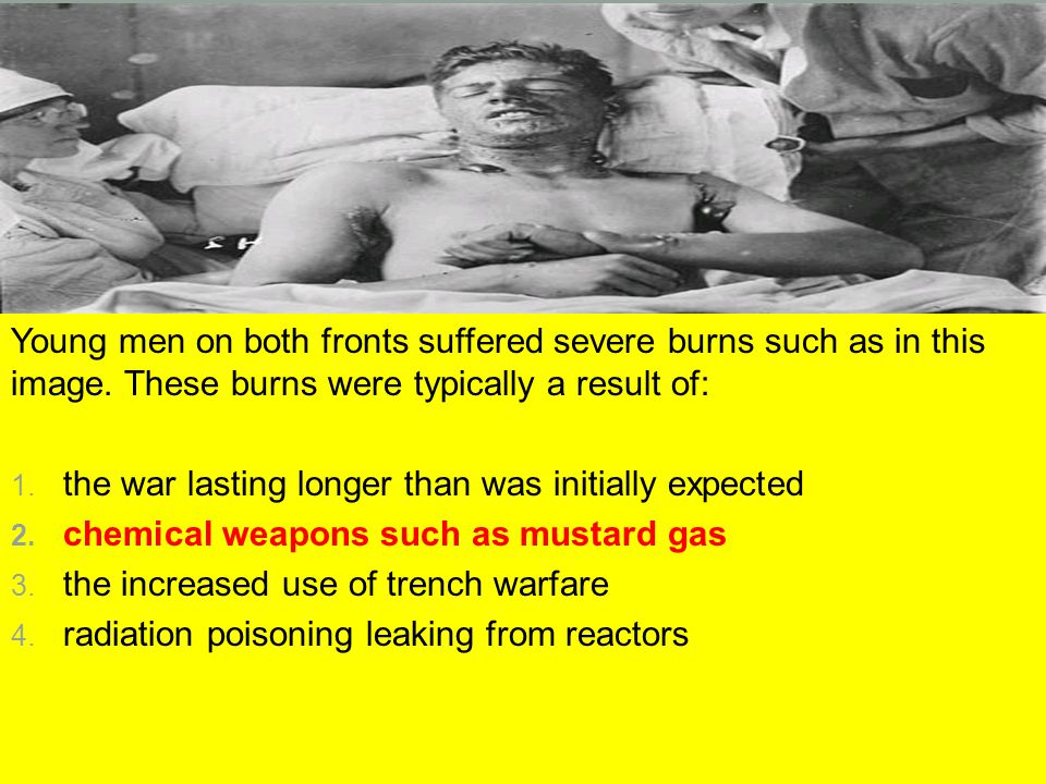 Young men on both fronts suffered severe burns such as in this image. These burns were typically a result of: 1. the war lasting longer than was initi
