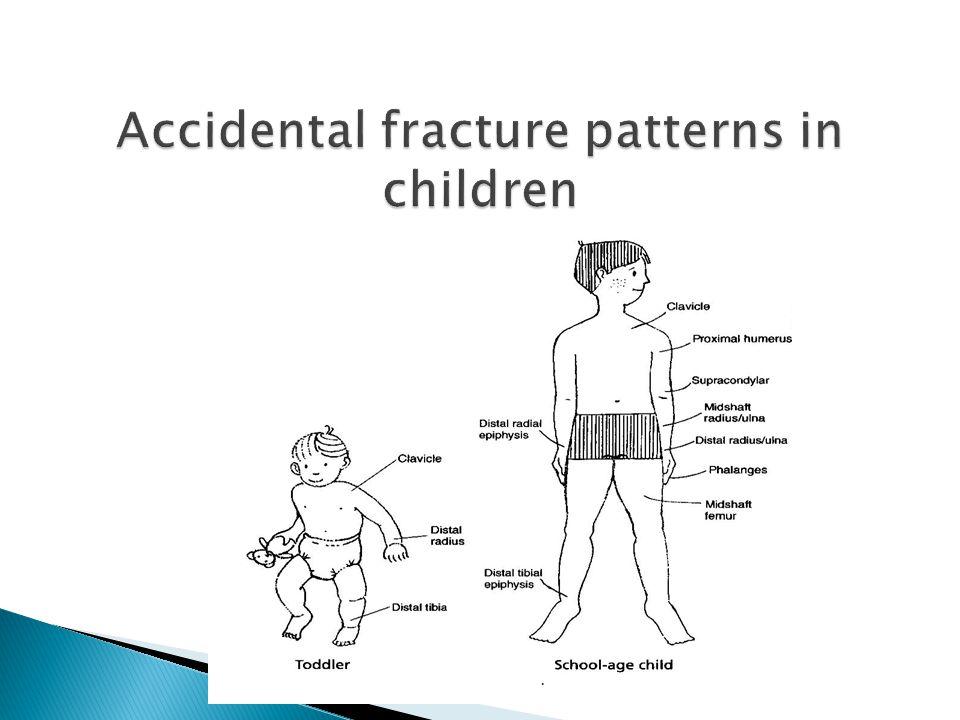 17 Accidental fracture patterns in children