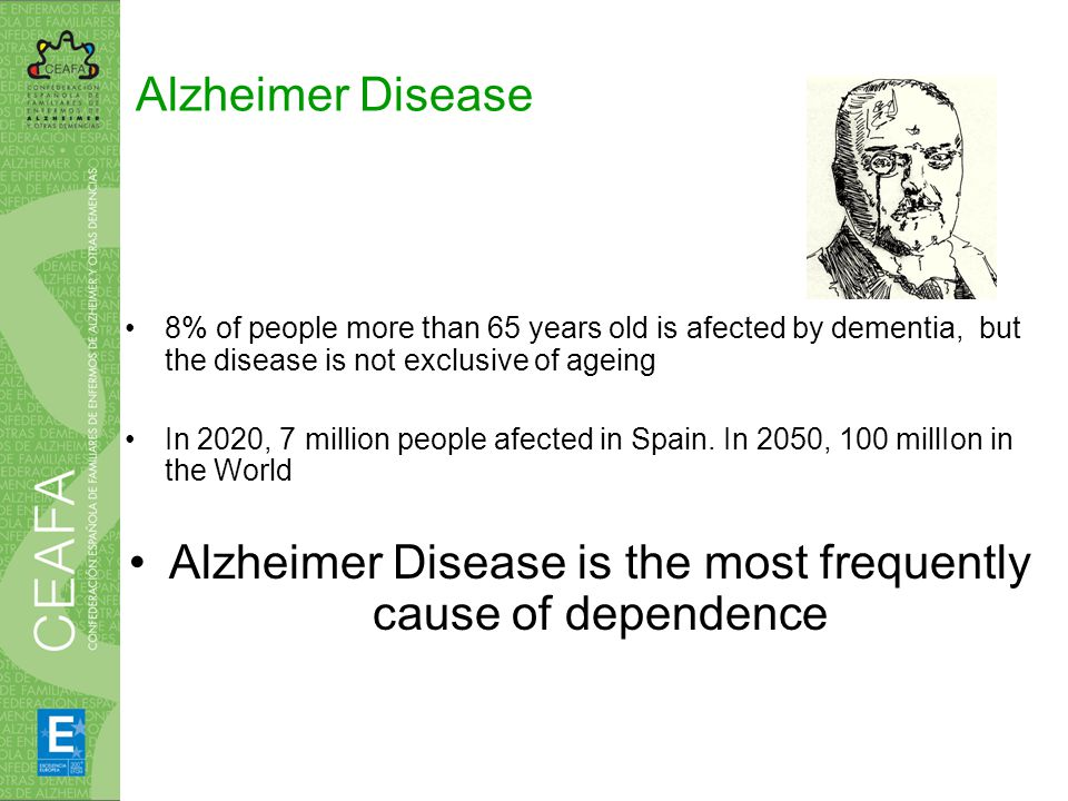 Alzheimer Disease 8% of people more than 65 years old is afected by dementia, but the disease is not exclusive of ageing In 2020, 7 million people afected in Spain.