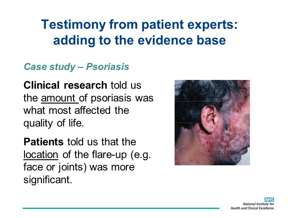 Testimony from patient experts: adding to the evidence base Case study – Psoriasis Clinical research told us the amount of psoriasis was what most affected the quality of life.