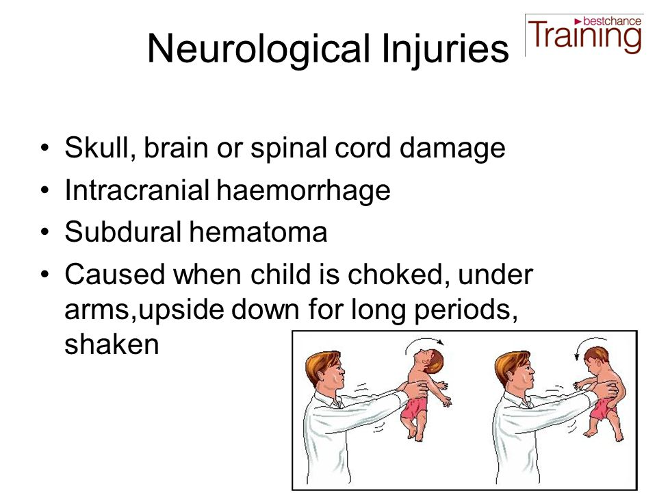 Neurological Injuries Skull, brain or spinal cord damage Intracranial haemorrhage Subdural hematoma Caused when child is choked, under arms,upside down for long periods, shaken