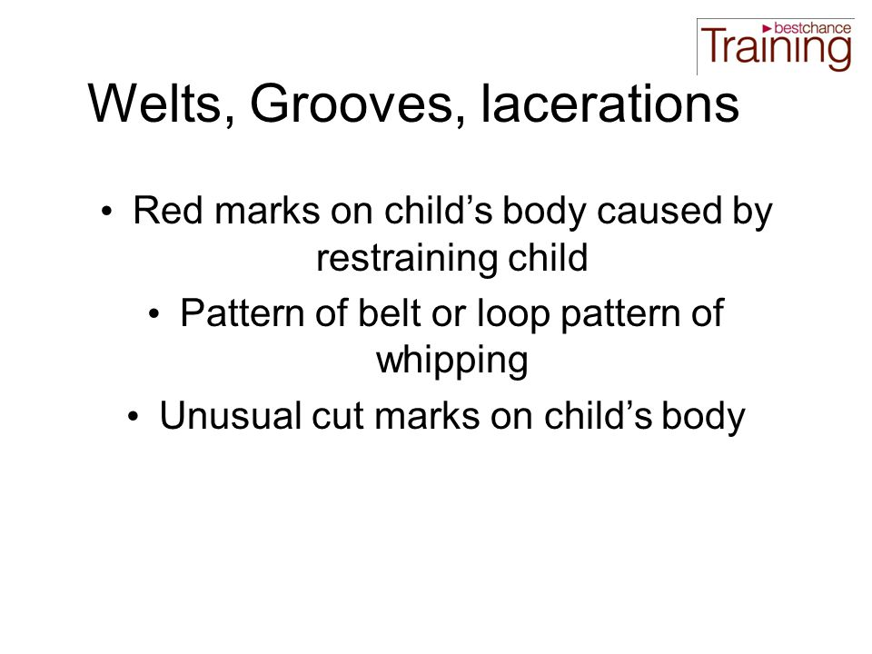 Welts, Grooves, lacerations Red marks on child's body caused by restraining child Pattern of belt or loop pattern of whipping Unusual cut marks on child's body