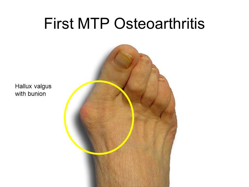 First MTP Osteoarthritis Hallux valgus with bunion