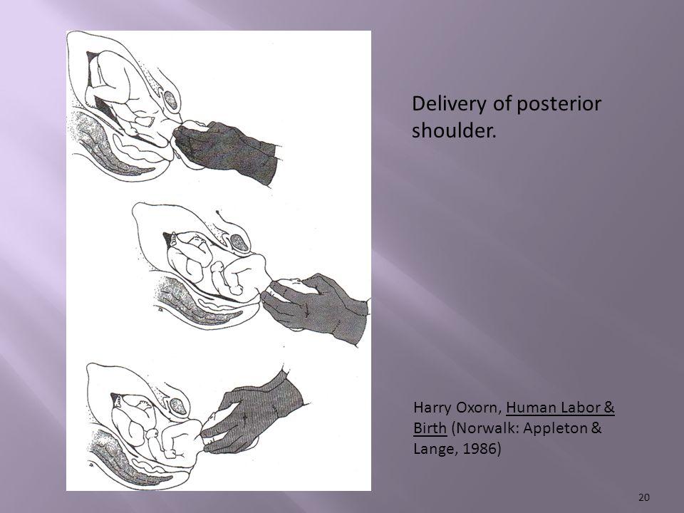 20 Delivery of posterior shoulder.