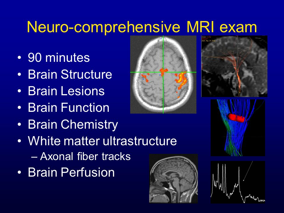 Neuro-comprehensive MRI exam 90 minutes Brain Structure Brain Lesions Brain Function Brain Chemistry White matter ultrastructure –Axonal fiber tracks Brain Perfusion