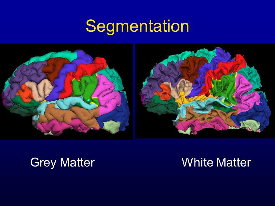 Segmentation Grey MatterWhite Matter