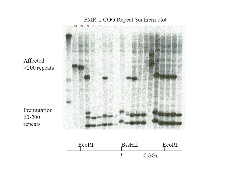 FMR-1 CGG Repeat Southern blot Affected >200 repeats Premutation 60-200 repeats EcoRIBssHIIEcoRI *CGGn