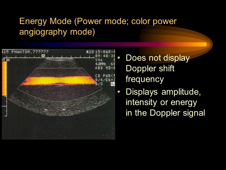 Energy Mode (Power mode; color power angiography mode) Does not display Doppler shift frequency Displays amplitude, intensity or energy in the Doppler